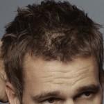 Saç dökülmesinin nedenleri nelerdir ve nasıl önlenir?