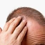 Saç ekimi nasıl yapılır? (Video)